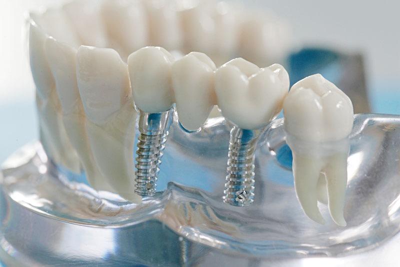 Имплантация зубов в Китае